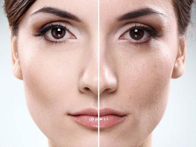 پوست شما زمانی پوست سالم و پوست شاداب است که کاملا تمیز باشد.پاکسازی پوست و مراقبت از پوست Peeling به معنی برداشتن قشر سطحی از روی پوست است.