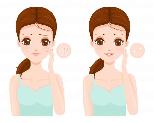 صاف كردن منافذ پوست با ماسک خانگی