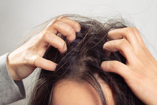 درمان خانگی شپش سر